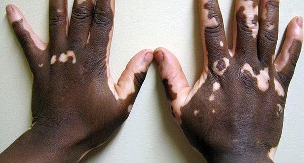 بیماری ویتیلیگو